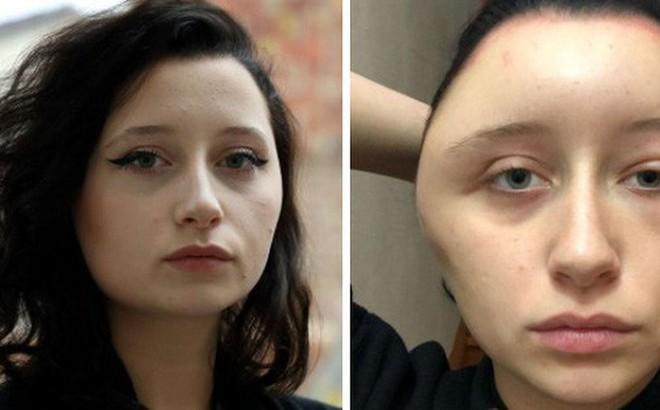 Cô gái xinh đẹp bàng hoàng thấy khuôn mặt mình bị biến dạng sau một đêm, nguyên nhân không ngờ là thứ mà đa số chị em đều dùng