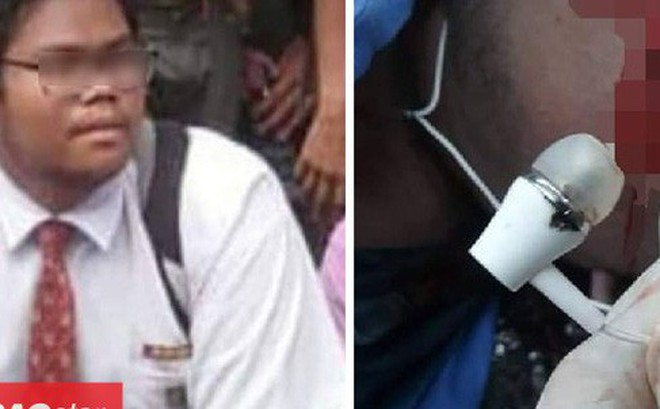 Sạc điện thoại rồi đeo tai nghe khi ngủ, thiếu niên 16 tuổi mất mạng