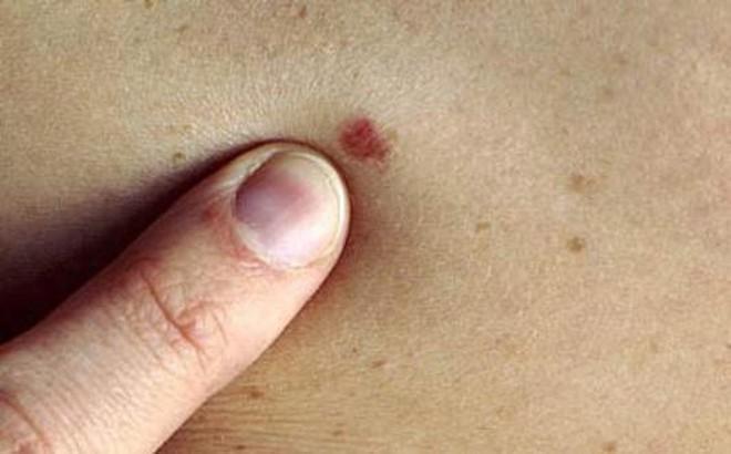 Dấu hiệu ung thư tuyến mồ hôi