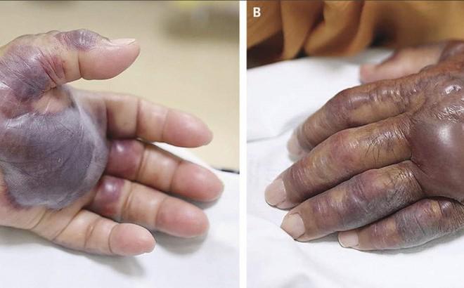 Ăn hàu sống, một người đàn ông phải cắt cụt cả bàn tay
