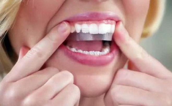 """Có nên làm trắng răng """"thần tốc"""" bằng miếng dán?"""