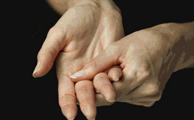 Biểu hiện bệnh viêm khớp dạng thấp