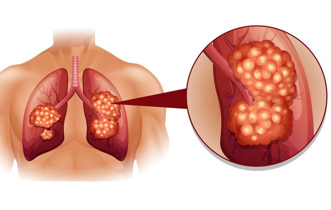 Ho trong bao lâu thì bạn nên đi khám để phòng ngừa bệnh ung thư phổi? - Ảnh 2.