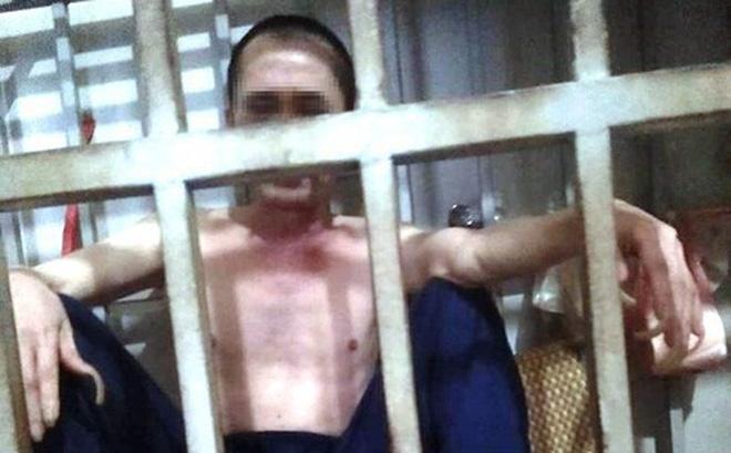 """Người đàn ông Thanh Hóa tố bị vợ nhốt nhiều năm liền trong cũi sắt: """"Chú cứu anh với!"""""""