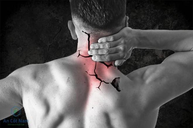 7 Bài thuốc chữa thoát vị đĩa đệm cột sống cổ bằng đông y hiệu quả - Ảnh 1.