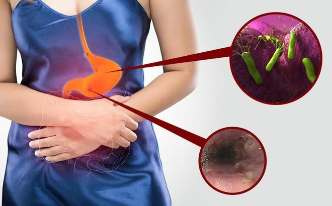 Viêm loét dạ dày tá tràng: Nguyên nhân, triệu chứng và cách điều trị bệnh