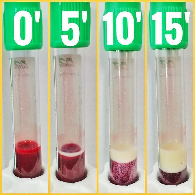 Đi xét nghiệm, sau 15 phút máu biến thành màu vàng: Lời cảnh báo các tiên tửu dịp Tết - Ảnh 1.