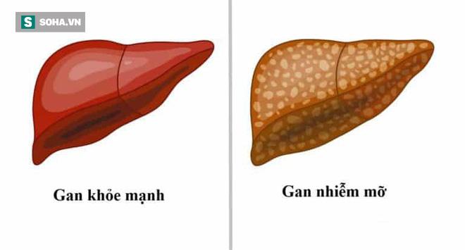 Ngày càng có nhiều người bị gan nhiễm mỡ: Nhận ra bệnh sớm, bạn không bị xơ gan và suy gan - Ảnh 1.