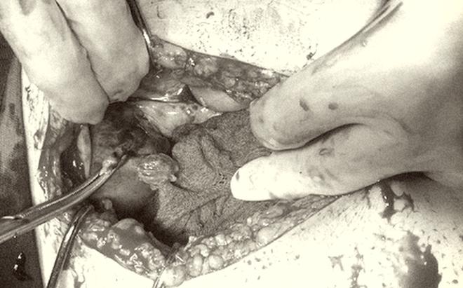 Thai nhi 39 tuần tử vong, mẹ phải cắt tử cung do một sai lầm đáng tiếc