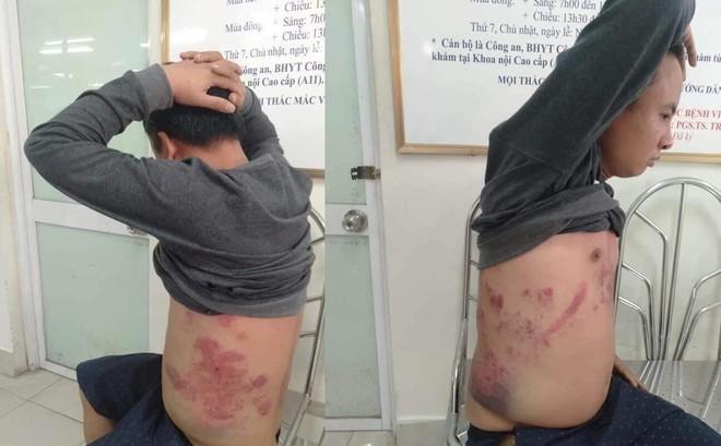 Tài xế phản đối trạm thu phí BOT bị nhóm người lạ mặt bắt lên ô tô đánh đập dã man?