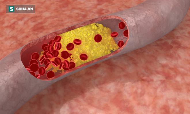 Nhóm người dễ mắc mỡ máu cao: Cách nhận biết và phòng tránh hiệu quả, dấu hiệu báo động - Ảnh 1.