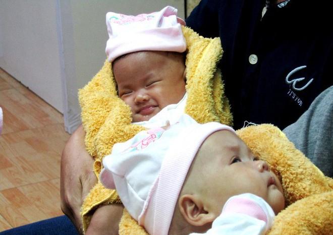 Rụng tim với 2 cô bé song sinh dính liền ngày xuất viện - Ảnh 1.