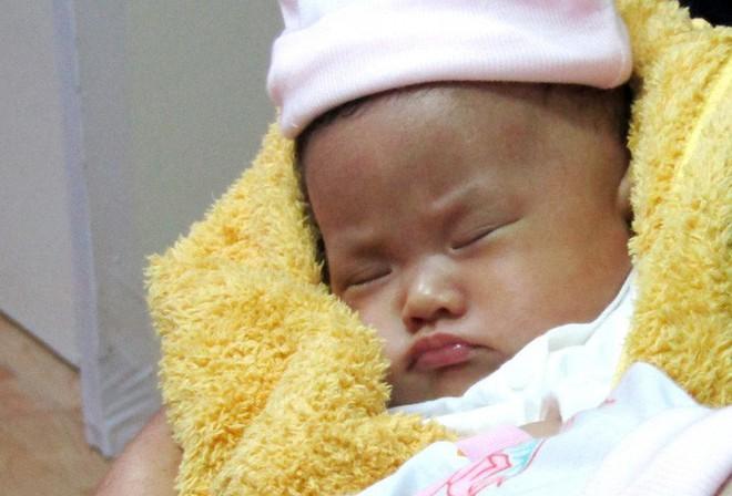 Rụng tim với 2 cô bé song sinh dính liền ngày xuất viện - Ảnh 2.