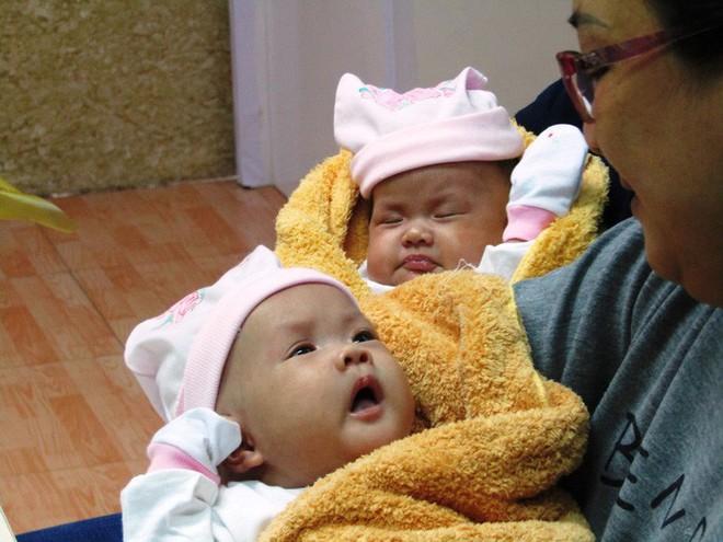 Rụng tim với 2 cô bé song sinh dính liền ngày xuất viện - Ảnh 4.