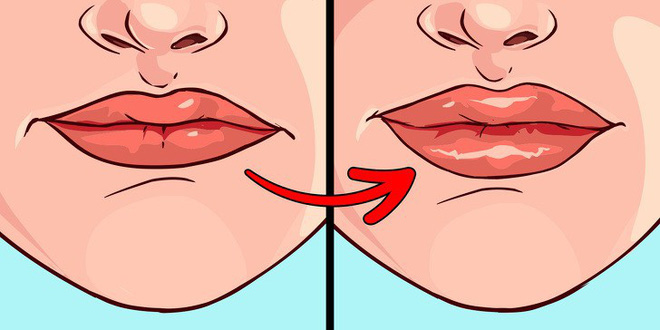 8 sự thay đổi của đôi môi tiết lộ rất nhiều về sức khoẻ - Ảnh 7.