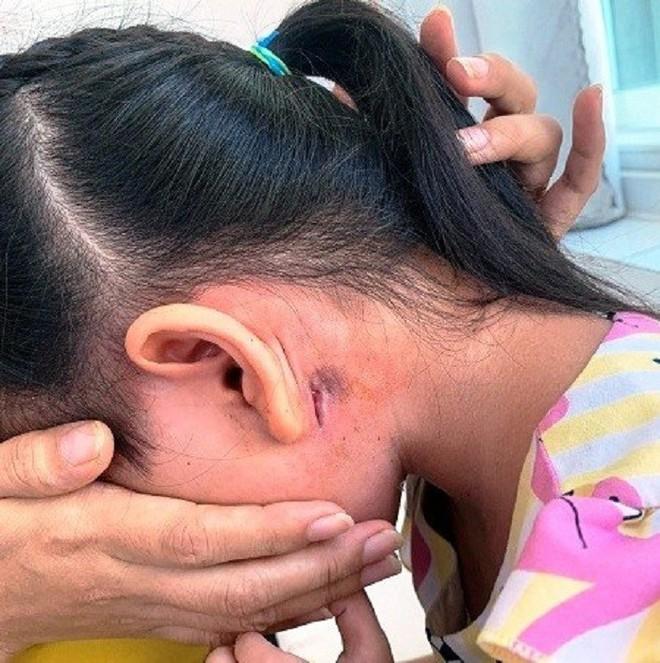 Thêm bệnh nhi 5 tuổi mắc bệnh truyền nhiễm nguy hiểm Whitmore - Ảnh 1.