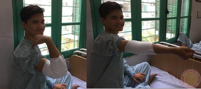 Bác sĩ kinh ngạc khi thấy hàng trăm viên sỏi trong khớp khuỷu của nam thanh niên 18 tuổi - Ảnh 4.