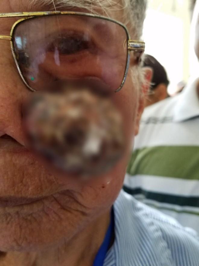 Phẫu thuật cắt bỏ khối u xùi loét má trái, tạo hình thành công cho cụ ông 91 tuổi - Ảnh 1.