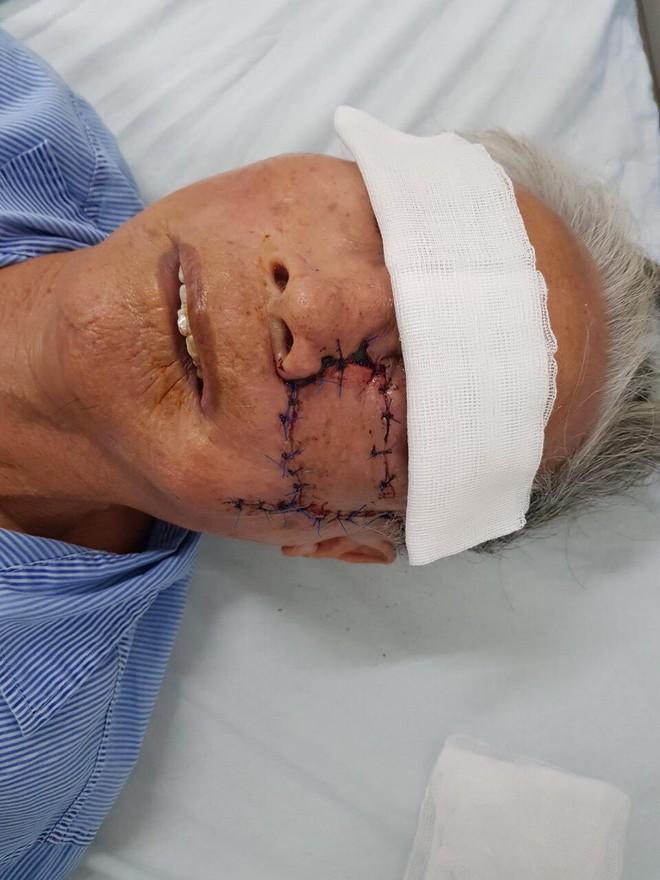 Phẫu thuật cắt bỏ khối u xùi loét má trái, tạo hình thành công cho cụ ông 91 tuổi - Ảnh 3.
