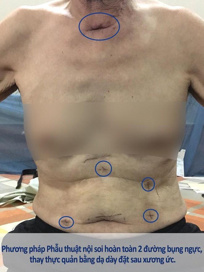 Phẫu thuật nội soi hoàn toàn: Sự lựa chọn mới trong điều trị ung thư thực quản - Ảnh 3.