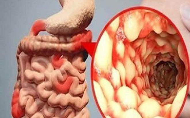 Người mắc bệnh này có nguy cơ cao bị ung thư đại tràng: BS dặn dấu hiệu bất thường cần nhớ