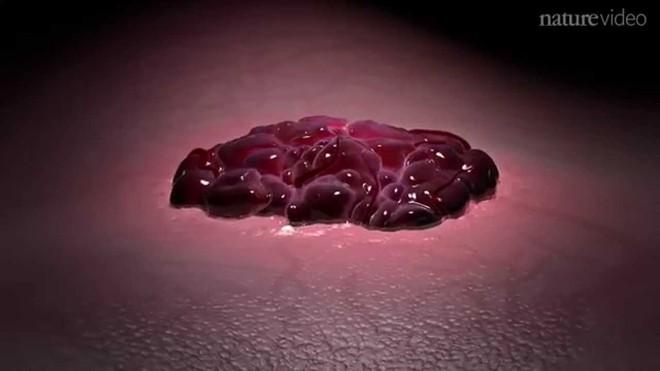 5 việc mà nhiều người đang làm hàng ngày chính là cách nuôi tế bào ung thư lớn lên - Ảnh 1.