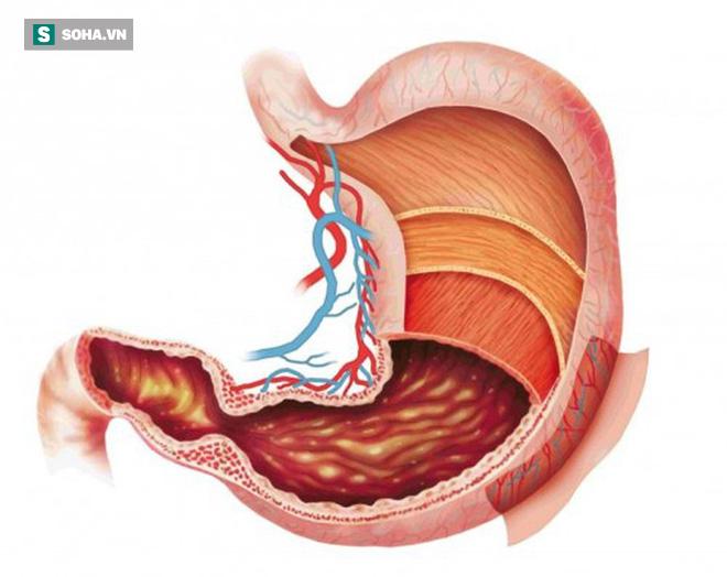 Những nhóm người dễ bị ung thư dạ dày: 3 việc cần làm ngay để ngăn ngừa mắc bệnh - Ảnh 2.