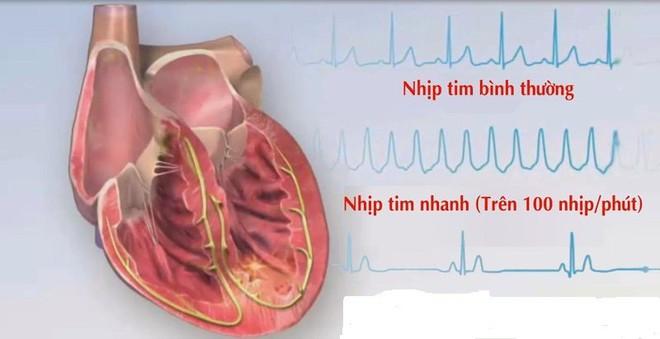 """Nhận diện """"thủ phạm"""" gây rối loạn nhịp tim - Ảnh 1."""
