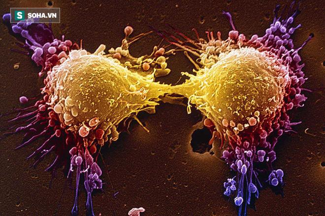 Cải thiện hệ miễn dịch là thuốc chống ung thư tốt nhất: Cơ thể sẽ tự tiêu diệt tế bào xấu - Ảnh 1.