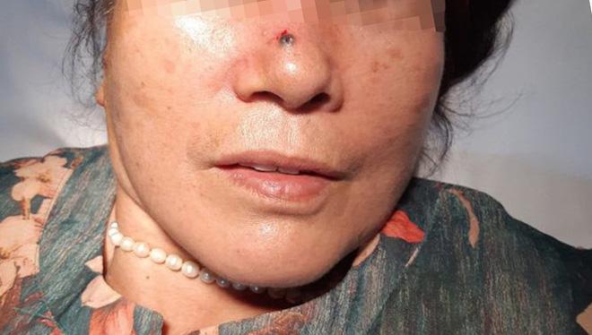 Nốt ruồi 2 năm trên mũi lại 'hóa' ung thư da nguy hiểm - Ảnh 1.