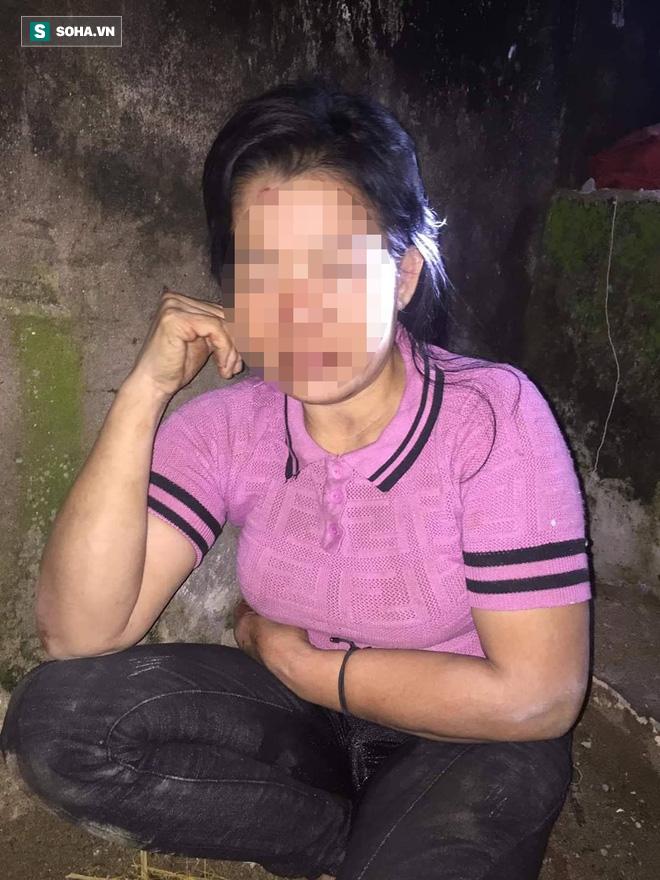 Một phụ nữ bị kẻ lạ đánh đập dã man vào vùng kín trong đêm - ảnh 1