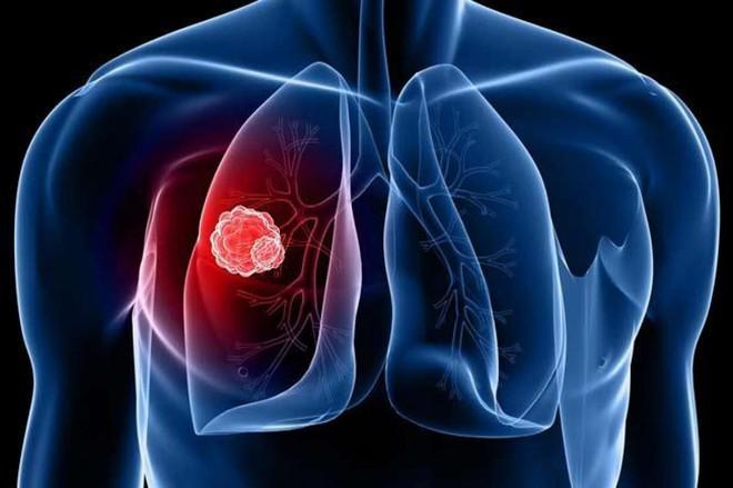5 giải pháp đơn giản nhất để ngăn ngừa ung thư phổi: Mỗi người đều nên áp dụng sớm - Ảnh 1.