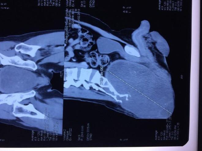 Người đàn ông không nằm, ngồi được vì đeo khối u khổng lồ đằng sau mông - Ảnh 3.