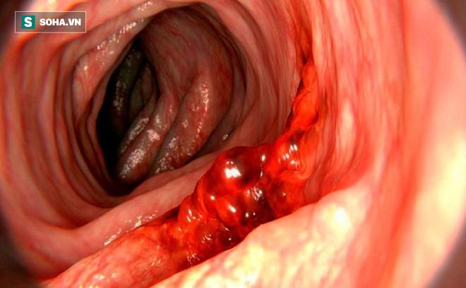 5 triệu chứng báo động về khối u ung thư đại tràng đang lớn: Có 1 dấu hiệu cũng phải khám - Ảnh 1.