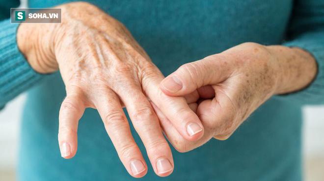 11 lý do khiến bệnh viêm khớp dạng thấp tấn công nhiều người: Nên điều chỉnh lại ngay - Ảnh 2.
