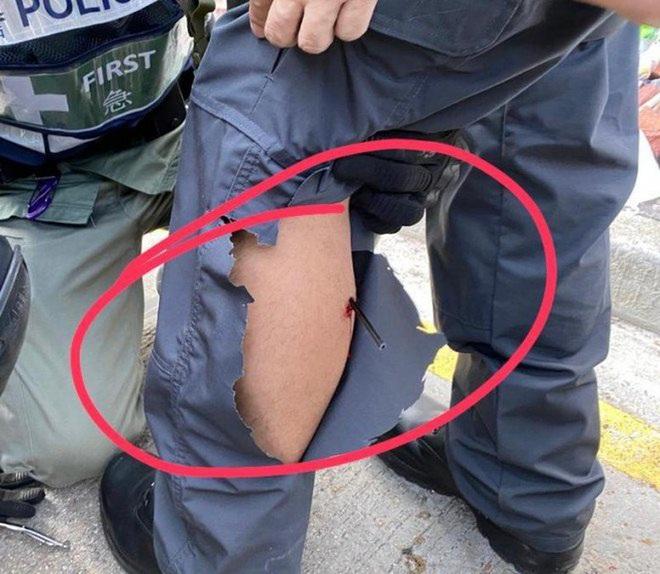 Cảnh sát Hong Kong trúng tên của người biểu tình - ảnh 1