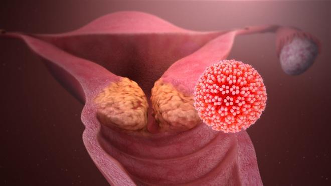 Ung thư âm thầm phát triển phi mã nếu có 3/5 triệu chứng, làm ngay 8 việc để tự cứu mình - Ảnh 1.
