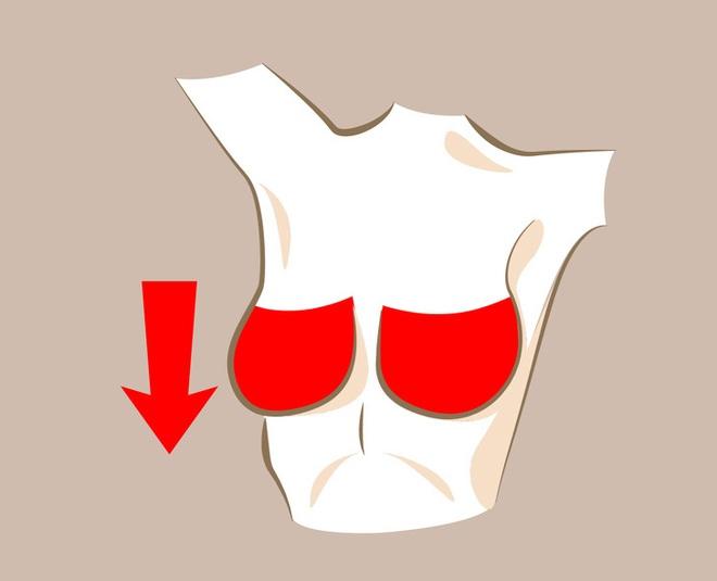 6 thay đổi hình dáng ngực bất thường: Đa phần là dấu hiệu cảnh báo bệnh ung thư - Ảnh 2.
