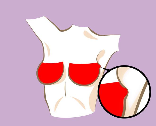 6 thay đổi hình dáng ngực bất thường: Đa phần là dấu hiệu cảnh báo bệnh ung thư - Ảnh 4.