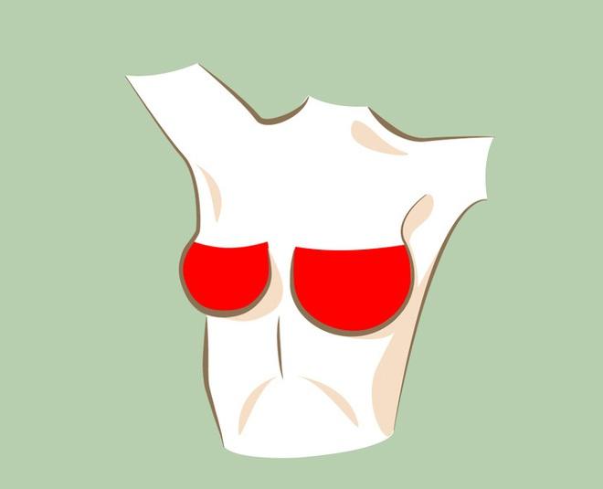 6 thay đổi hình dáng ngực bất thường: Đa phần là dấu hiệu cảnh báo bệnh ung thư - Ảnh 7.