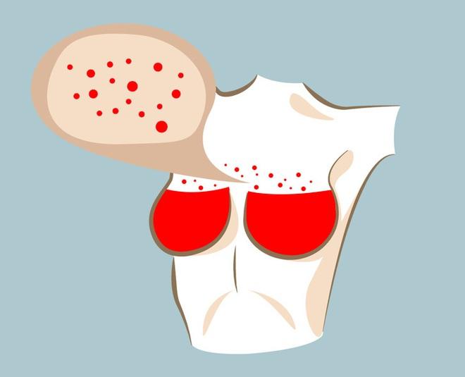 6 thay đổi hình dáng ngực bất thường: Đa phần là dấu hiệu cảnh báo bệnh ung thư - Ảnh 8.