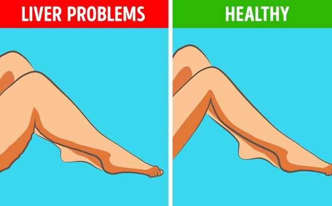 6 dấu hiệu bất thường ở chân cảnh báo các cơ quan nội tạng đang có bệnh nguy hiểm