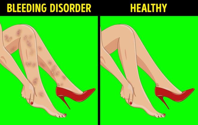 6 dấu hiệu bất thường ở chân cảnh báo các cơ quan nội tạng đang có bệnh nguy hiểm - Ảnh 4.