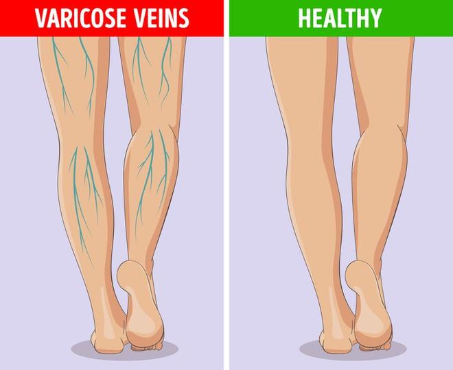 6 dấu hiệu bất thường ở chân cảnh báo các cơ quan nội tạng đang có bệnh nguy hiểm - Ảnh 7.