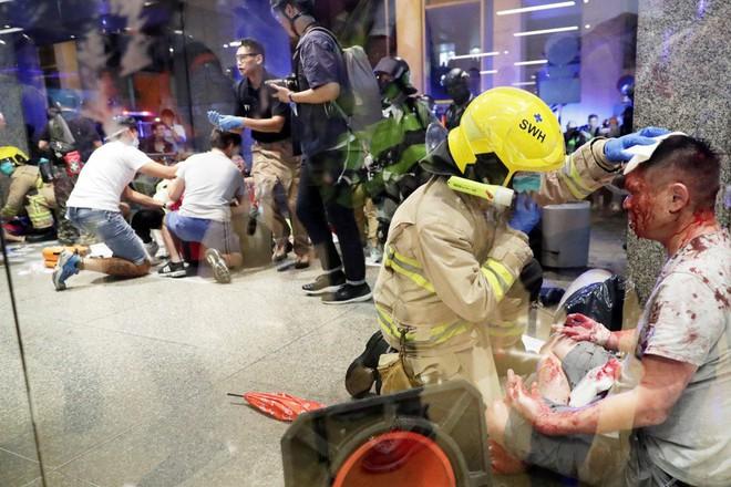 Hong Kong: Kinh hoàng vụ tấn công bằng dao đẫm máu, nghi phạm cắn đứt tai quan chức địa phương - Ảnh 2.