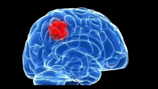 Chuyên gia bệnh viện K Trung ương chỉ ra 8 bất thường có thể là dấu hiệu của u não - Ảnh 2.