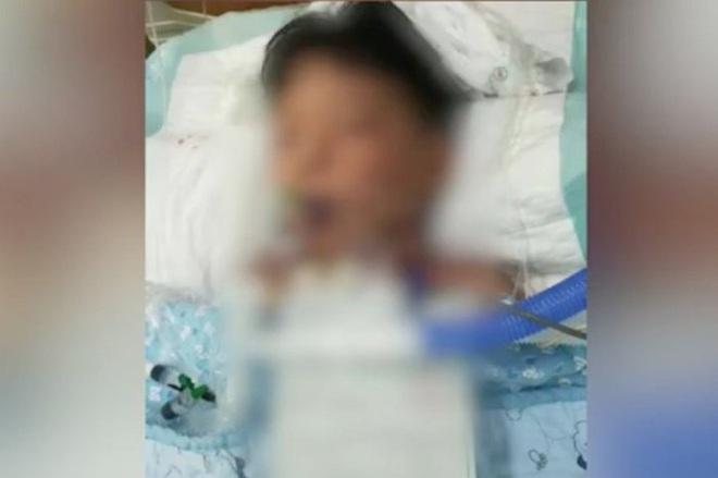 Bé trai ở trong tình trạng nguy kịch 2 tuần kể từ khi ăn nhầm thuốc diệt chuột. Ảnh: SCMP