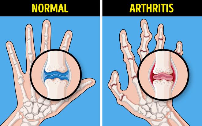 Bệnh xương khớp có thể trở nên rất nguy hiểm nếu bỏ qua 7 dấu hiệu cảnh báo - Ảnh 6.