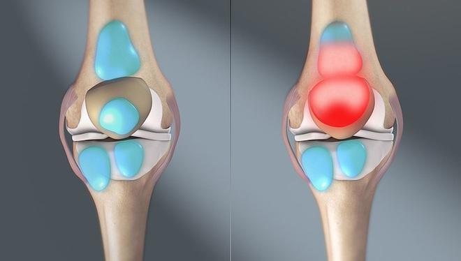 Bệnh xương khớp có thể trở nên rất nguy hiểm nếu bỏ qua 7 dấu hiệu cảnh báo - Ảnh 7.