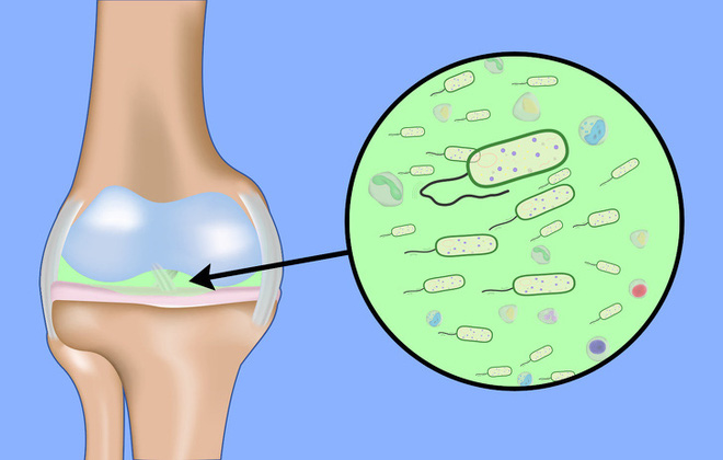 Bệnh xương khớp có thể trở nên rất nguy hiểm nếu bỏ qua 7 dấu hiệu cảnh báo - Ảnh 11.